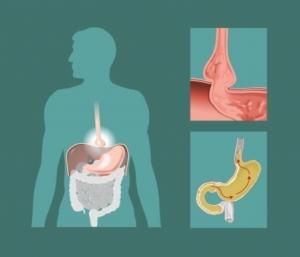 16304225 - schematic drawing of hiatal hernia